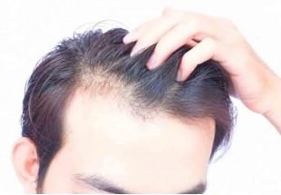 ۸ باور قدیمی درباره مو