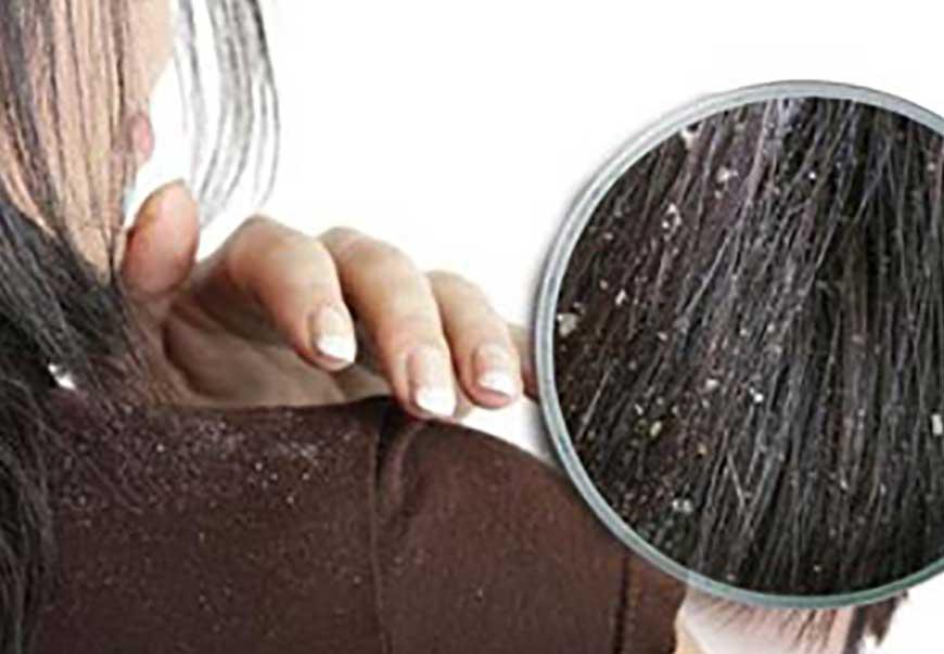 ۵ عامل اصلی شوره سر را بشناسید